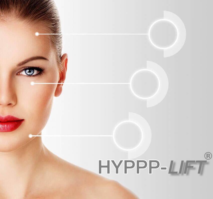 Hautverjuengung-hyppp-