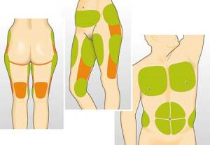 Typische Körperstellen zum Fettabsaugen
